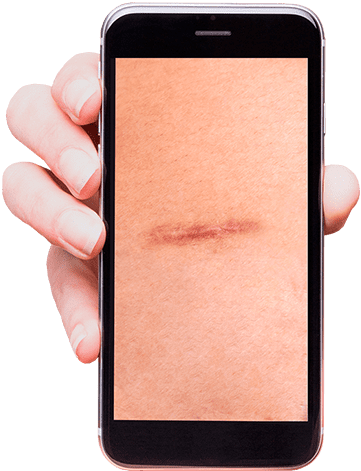hand holding mobile phone showing an image of a bariatric scar